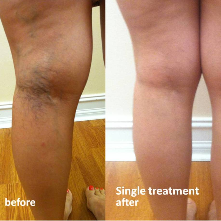 spider vein treatment east bay california, san francisco spider vein treatment, best spider vein
